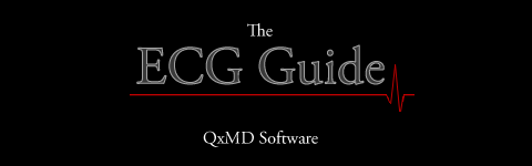 The ECG Guide