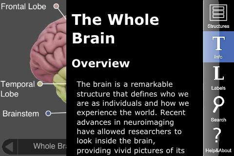 3D brain 1