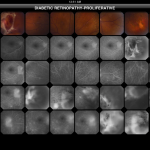 Retinal Atlas HD, atlante di patologia della retina per iPad