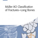 Ortopedia per iPhone: la classificazione Müller AO delle fratture delle ossa lunghe
