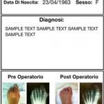 Hallux Valgus, l'app che aiuta gli Ortopedici nella valutazione delle deformità angolari dell'avampiede.