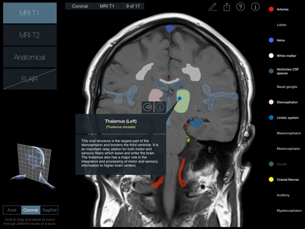 Head Radiology App recensione 3D4Medical Mobimed_2
