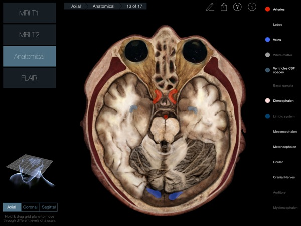 Head Radiology App recensione 3D4Medical Mobimed_4