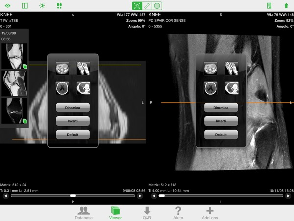 OsiriX HD DICOM PACS Viewer iPhone iPad recensione Mobimed 3