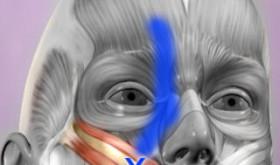 La mappa anatomica dei trigger points a portata di smartphone