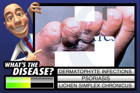 Diagnose the Disease