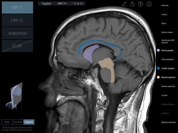 Head Radiology App recensione 3D4Medical Mobimed_1