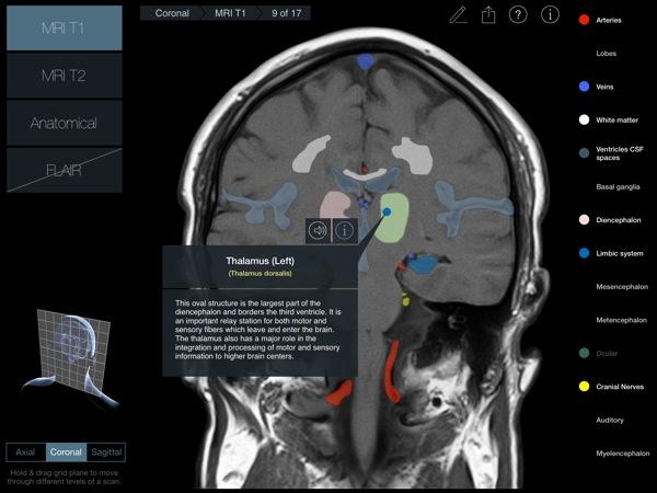 Head Radiology App recensione 3D4Medical Mobimed_2