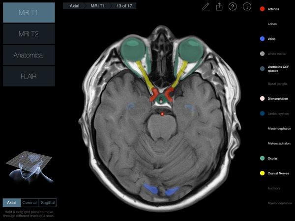 Head Radiology App recensione 3D4Medical Mobimed_3
