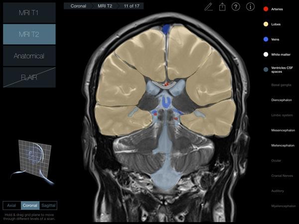 Head Radiology App recensione 3D4Medical Mobimed_6