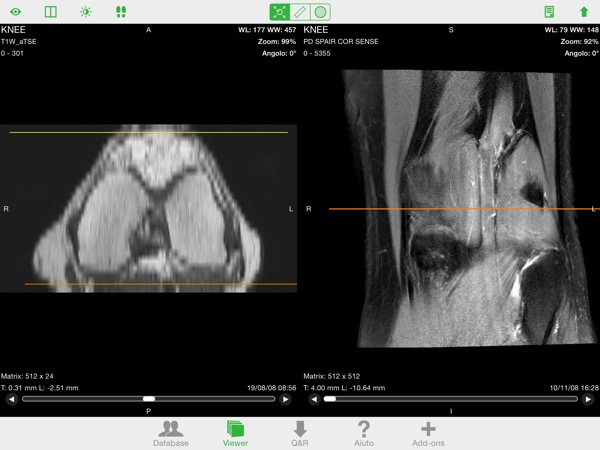 OsiriX HD DICOM PACS Viewer iPhone iPad recensione Mobimed 1